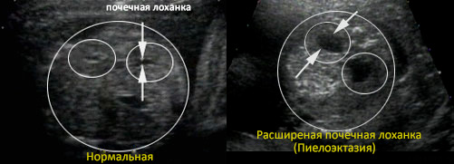 Расширены лоханки беременной