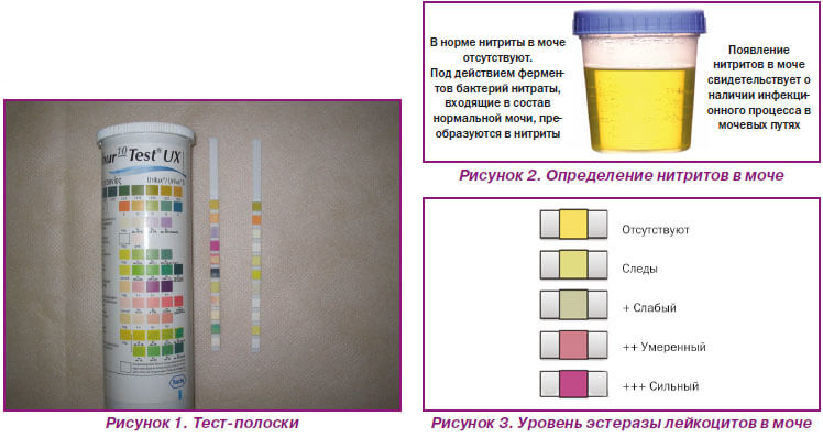 Как в домашних условиях проверить мочу на ацетон