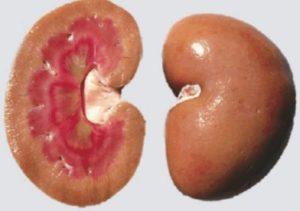 Пораженные почки амилоидозом