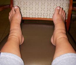 Отекли ноги при поражении амилоидозом