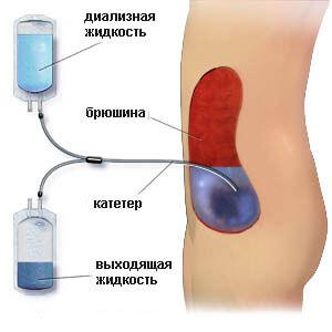 Процедура очистки крови от токсинов