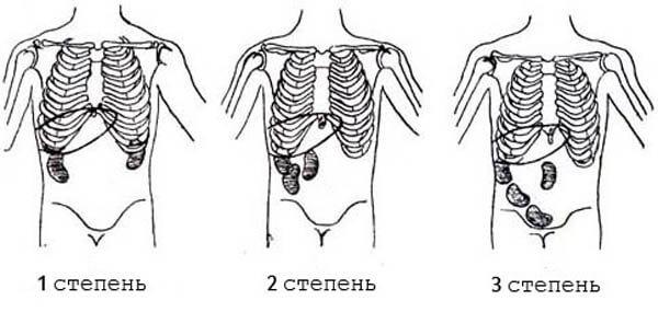 1, 2 и 3 степень нефроптоза