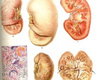Симптомы, лечение и диагностика острого гломерулонефрита
