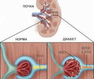 Симптомы и лечение диабетической нефропатии почки