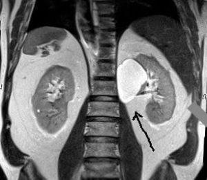 Кисту видно на МРТ