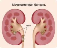 Cимптомы и методы лечения мочекаменной болезни у женщин