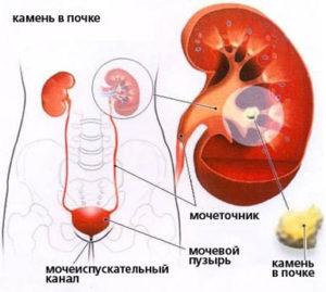Камни в мочевыводительной системе