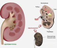 Почему появляется и как лечится пиелонефрит у ребенка