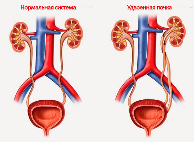 Нормальное состояние и патология