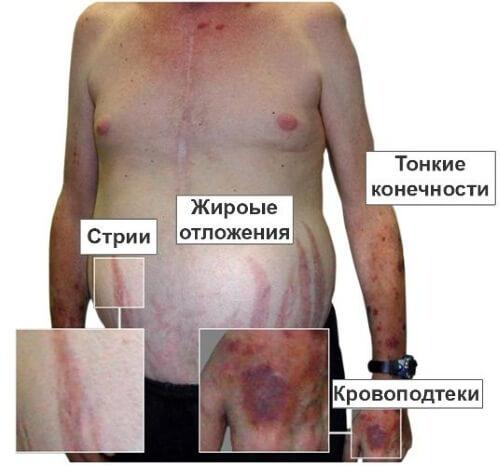 Признаки заболевания надпочечников