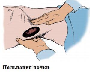 Диагностика с помощью ощупывания