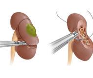 Резекция почки – удаление поврежденной части, опухоли или рака