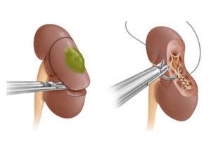 Удаление части органа