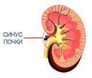 Методы лечения и диагностики синусовой кисты в почках