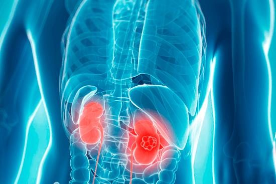 Приобретенная онкология