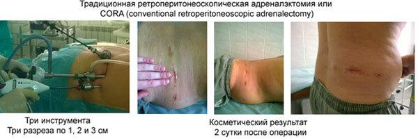 Удаление надпочечников с помощью адреналэктомии