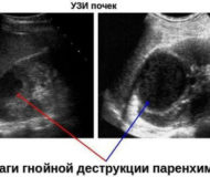 Абсцесс почки – гнойный воспалительный процесс