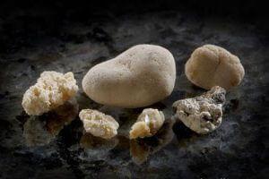 Так выглядят камни фосфорной кислоты