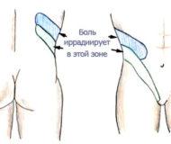 Симптоматика и лечение почечной колики
