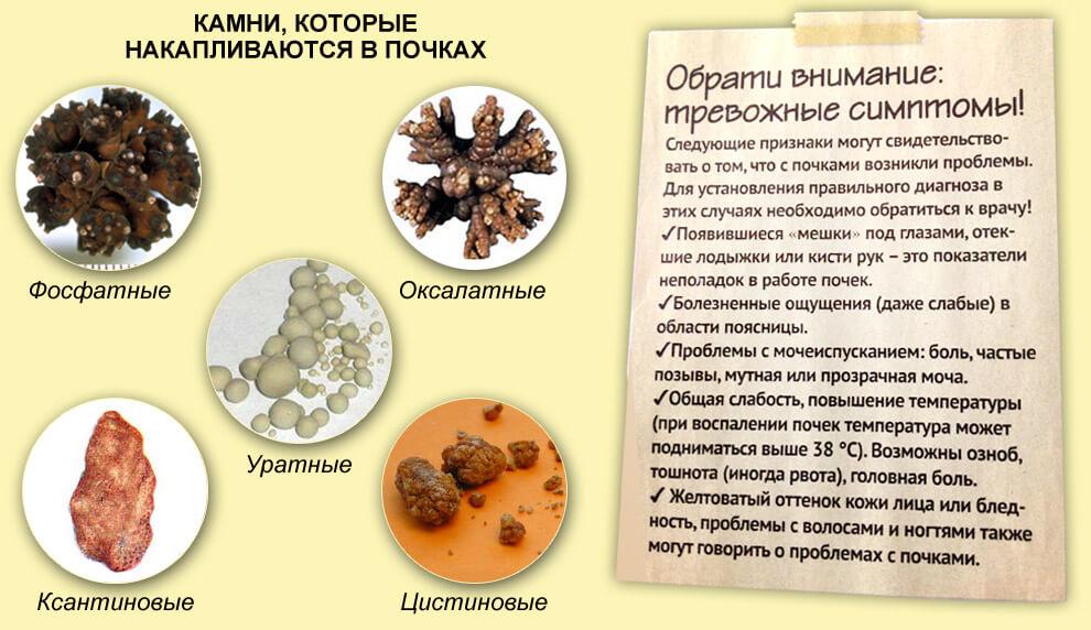 Разновидности камней и их главные симптомы