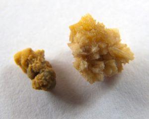 Образование камней в виде коралла