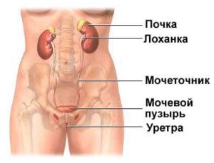 Локализация боли в мочеточнике