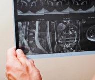 Подготовка и проведение МРТ почек