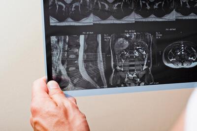 Снимки которые получаются после проведения МРТ