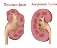 Проявление острой формы пиелонефрита у детей