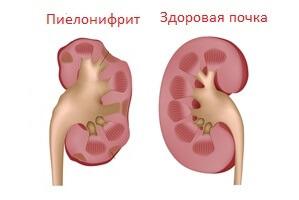 Нездоровый орган