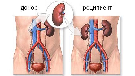 Пересадка органа от реципиента