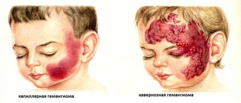 Циноз на коже