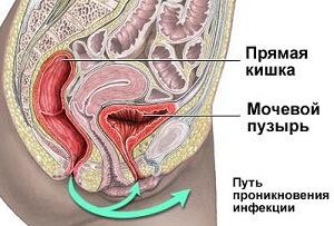 Инфекция проникает через уретру