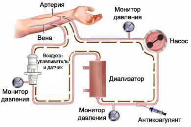 Процедура работы аппарата