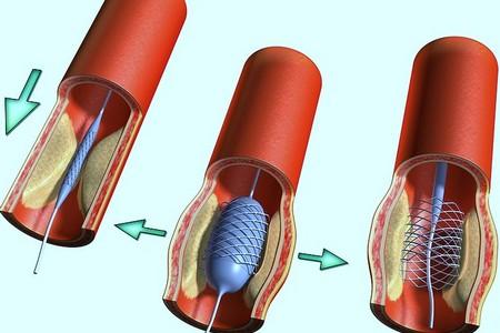 Увеличение кровотока