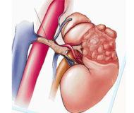 Симптомы и лечение гемангиомы почки