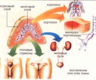 Симптоматика и лечение аденомы надпочечника у мужчин и женщин