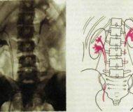 Что такое чашечно-лоханочная система почек (ЧЛС)