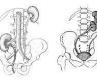Виды дистопии почки и способы её лечения