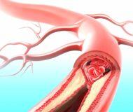Симптоматика и варианты лечения стеноза артерий почки