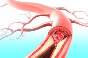 Закупоривание артерии ведущая к почке