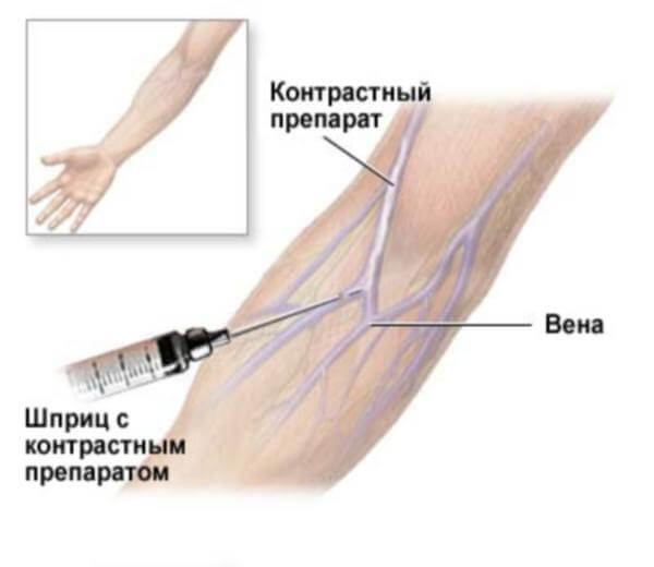 Введение препарата в вену