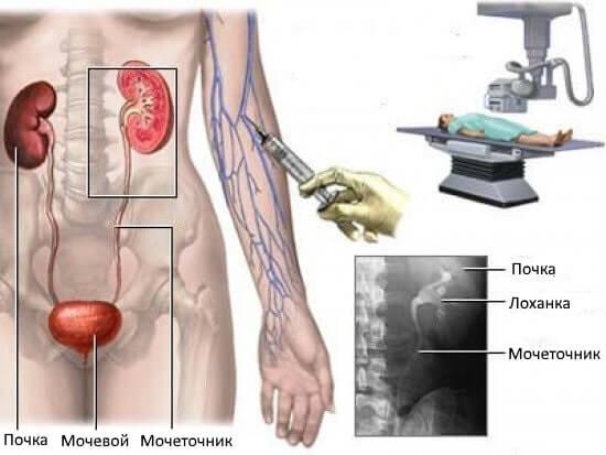 Рентген почек: как проходит процедура, подготовка, с контрастом и без