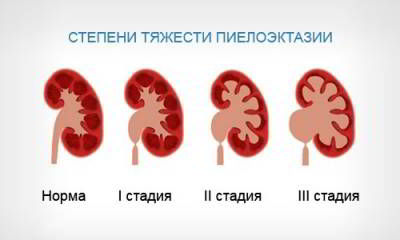 Степени тяжести заболевания