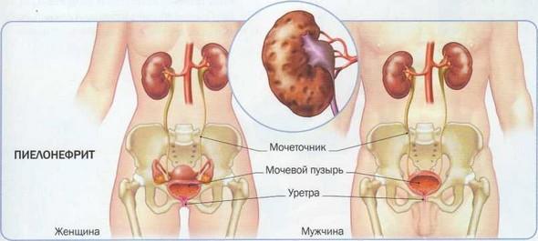 Пораженная инфекцией почка