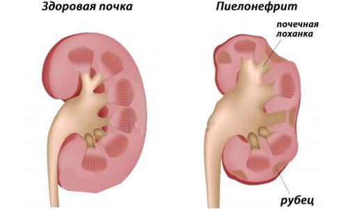 Здоровая и больная пиелонефритом почка