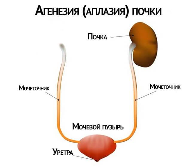 Отсутствие одного органа
