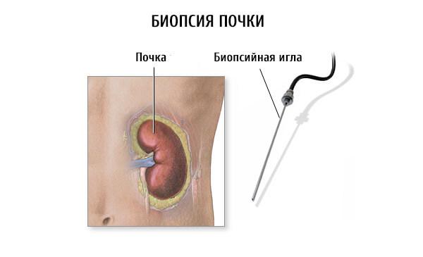 Забор ткани пораженного органа