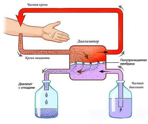 Кровь очищается посредством диализатора