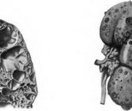 Симптомы и лечение губчатой почки
